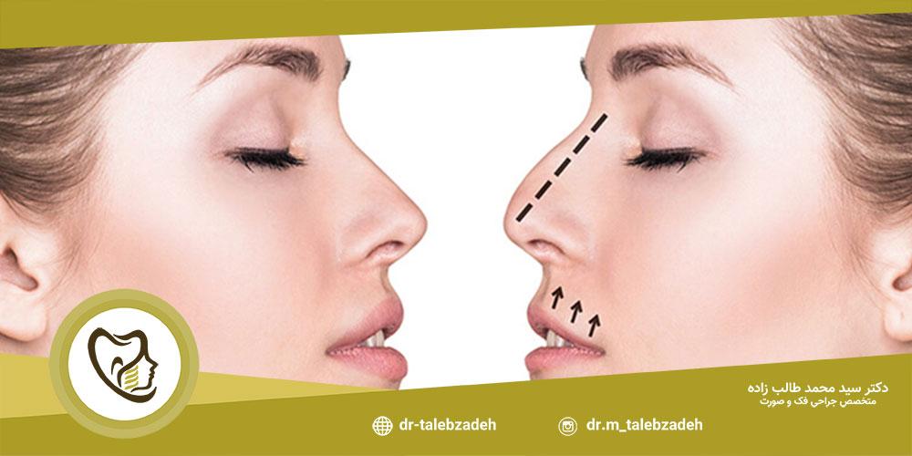 مزایای جراحی بینی - مطب دکتر طالب زاده در رشت