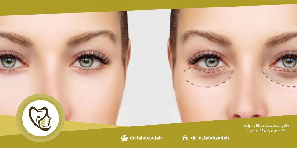 مزایای جراحی زیبایی پلک - مطب دکتر طالب زاده در شهر رشت