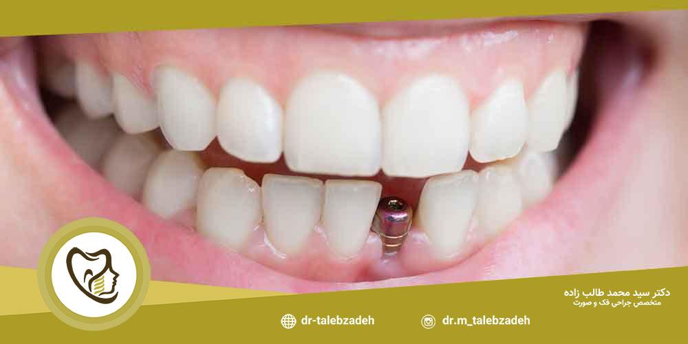 روش ایمپلنت دندان جلو - مطب دکتر طالب زاده در رشت