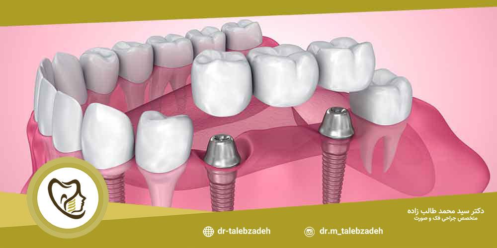 معایب ایمپلنت دندان جلو - مطب دکتر طالب زاده در رشت