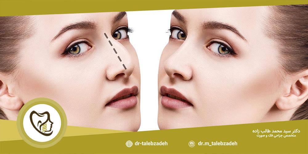 روش عمل بینی بسته - مطب دکتر طالب زاده در رشت