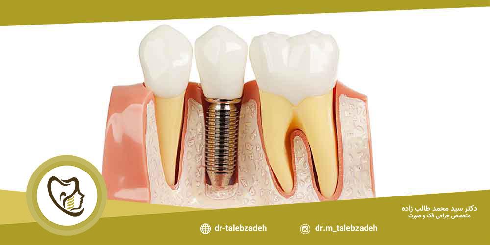 روشهای ایمپلنت دندان جلو - مطب دکتر طالب زاده دز رشت